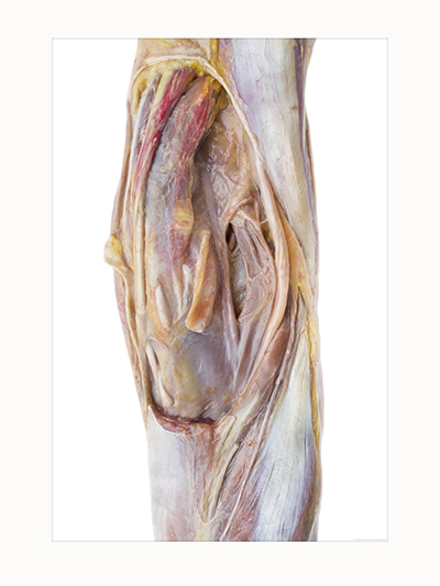 Lower Limb, Posterior View